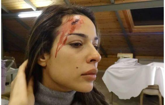 بالصورة: من طعن نادين نسيب نجيب بالسكين في وجهها؟