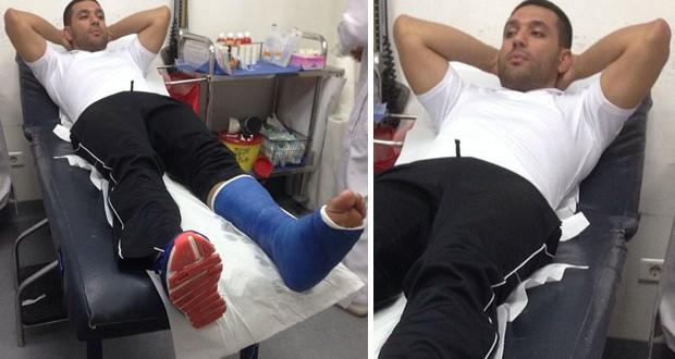 بالصورة: حسن الرداد يتعرّض لكسر في ساقه ويثير زعر جمهوره
