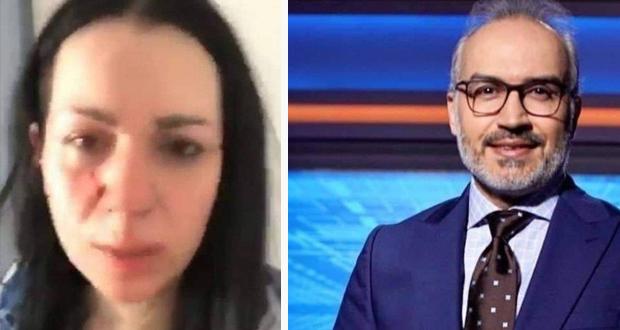 بعد كشف ضربه لها.. زوجة الإعلامي السوري تعلن هذه الحقائق عنه