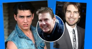 قبل توم كروز.. مشاهير تغيّرت ملامحهم بشكلٍ أثار دهشة الجميع